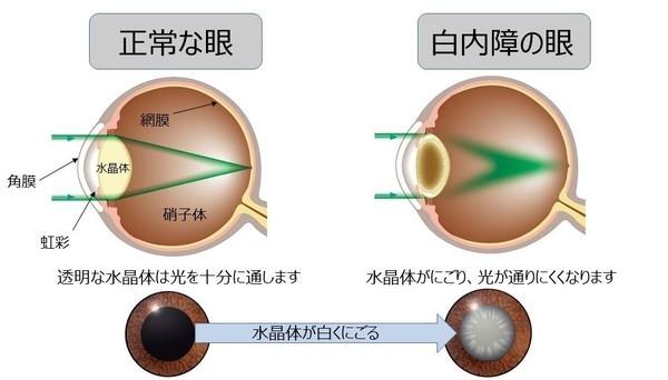 正常な眼と白内障の眼の解説図